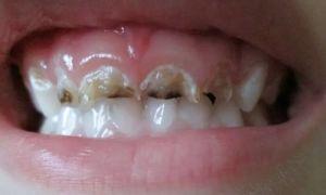 Почему крошатся зубы и лечение