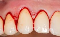 Как лечить, если кровоточит десна между зубами