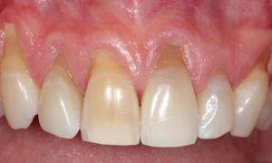 Что делать, если оголяются корни зубов и лечение