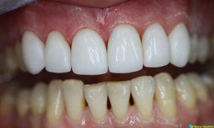 Как проводится наращивание зубов и его преимущества