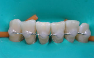 Как проводится шинирование зубов при пародонтите