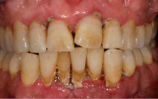 Почему появляется коричневый налет на зубах и способы избавления от него