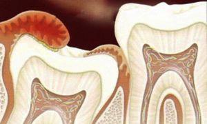 Как лечится капюшон на зубе мудрости