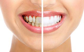 Как избавиться от белого налета на зубах около десен
