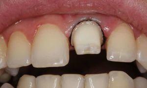 Как проводится препарирование зуба под металлокерамическую коронку и зачем оно нужно