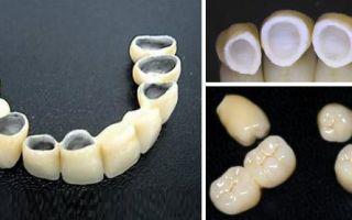 Какие бывают разновидности коронок на зубы