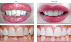 Какие виниры можно поставить на передние зубы