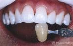 Как проводится химическое отбеливание зубов