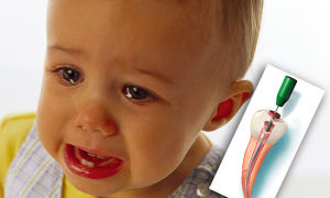 Почему болит зуб у ребенка и как его лечить