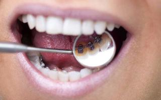 Сколько времени носят брекеты на зубах взрослые и дети