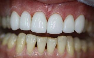 Какие бывают накладки на зубы вместо коронок