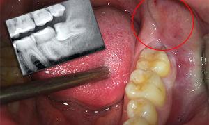 Удалять или лечить зубы мудрости по мнению стоматологов