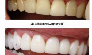Для чего проводится ламинирование зубов