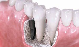 Как в стоматологии ставят зубные импланты
