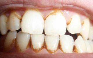 Как проводится удаление налета на зубах в домашних условиях