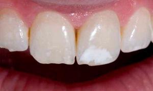 Как убрать белое пятно на зубе