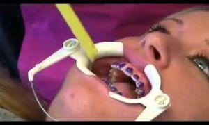 Как устанавливают брекеты на зубы