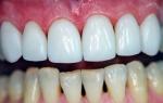 Как можно эффективно укрепить эмаль зубов