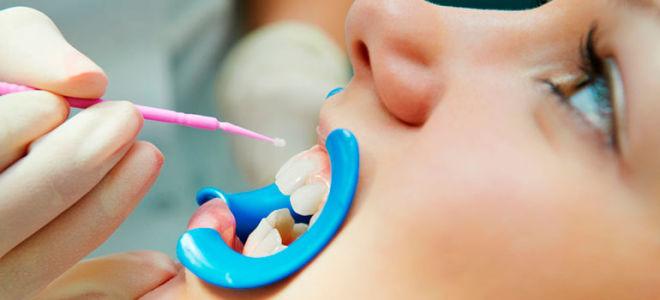 Как проводится фторирование зубов у детей и его преимущества