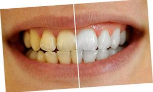 Что делать, если желтые зубы, и их отбеливание