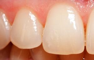 На зубах трещины