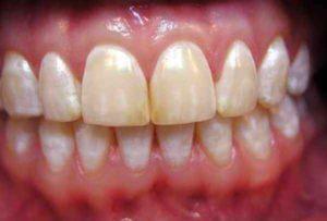 Белое пятно на зубе