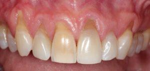 Оголяются корни зубов