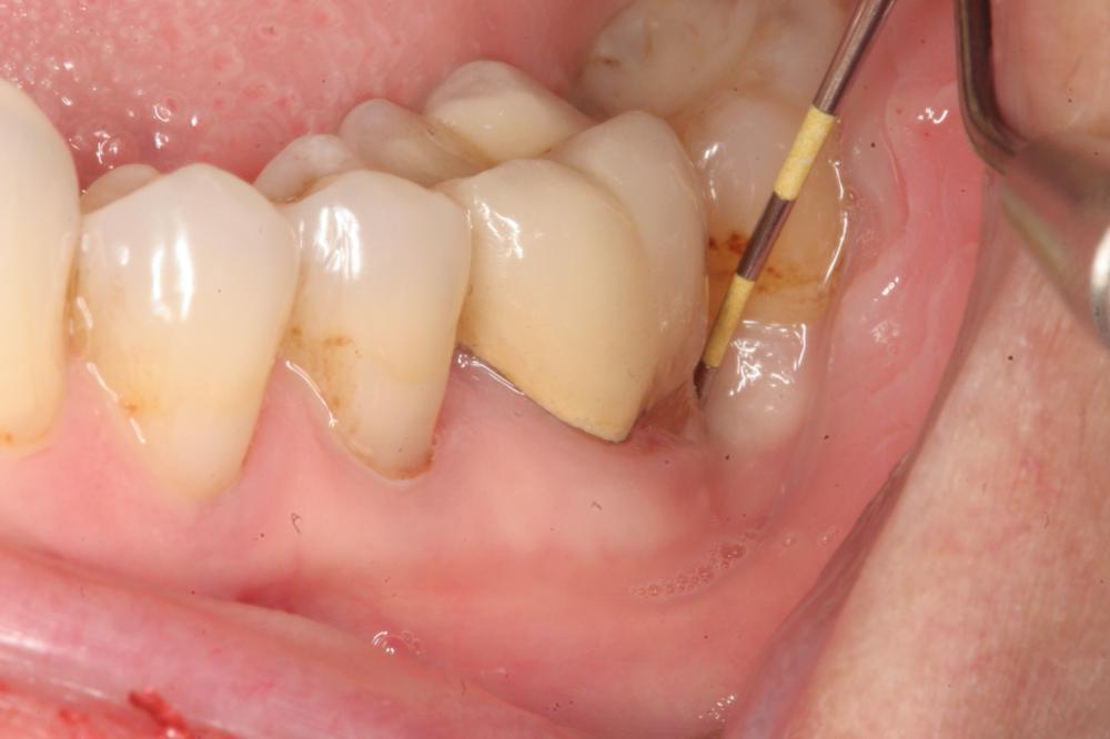 Что делать если начал выделяться гной из десны около зуба