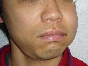 Что делать, если опухла щека после удаления зуба мудрости