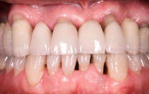 Отходит десна от нижнего или верхнего зуба – возможные причины