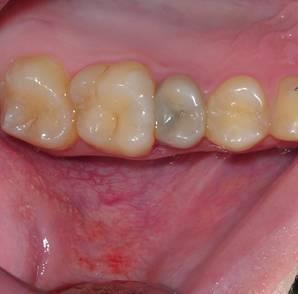 Что делать, если потемнел зуб и болит