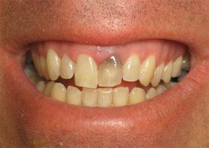 Почему темнеют зубы у взрослых