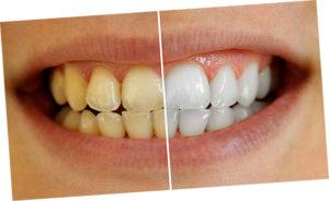 желтые зубы, и их отбеливание