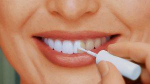 Основные причины пожелтения зубов