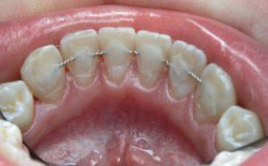 Как действует конструкция на зубы