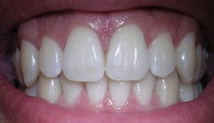 До скольких лет растут зубы у человека