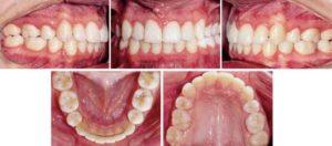 До скольких лет растут зубы