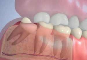 Коренные зубы – до скольких лет они растут у взрослого человека