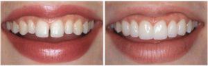 виниры на зубы в стоматологии