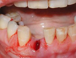 Как долго болит десна после удаления зуба
