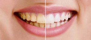 избавиться от зубного налета в домашних условиях