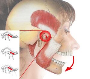 Что такое Артроз височно-нижнечелюстного сустава