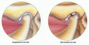лечить артрит челюстного сустава