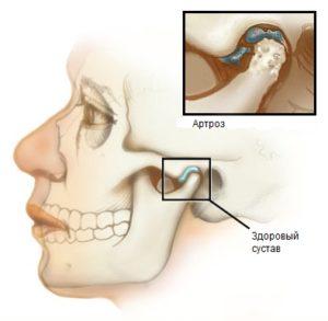 Острый артрит
