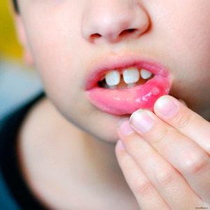 лечить инфекционный стоматит