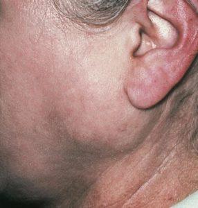 Как и чем лечить сиалоаденит подчелюстной слюнной железы