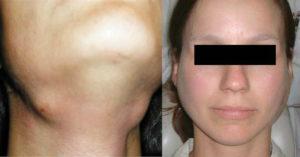 Как  лечить сиалоаденит подчелюстной слюнной железы