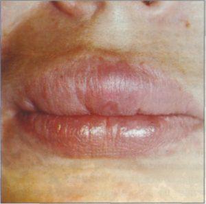 лечить воспаление слизистой оболочки полости рта