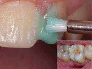 чем лечится кариес зубной эмали