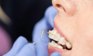 Как именно снимают брекеты с зубов